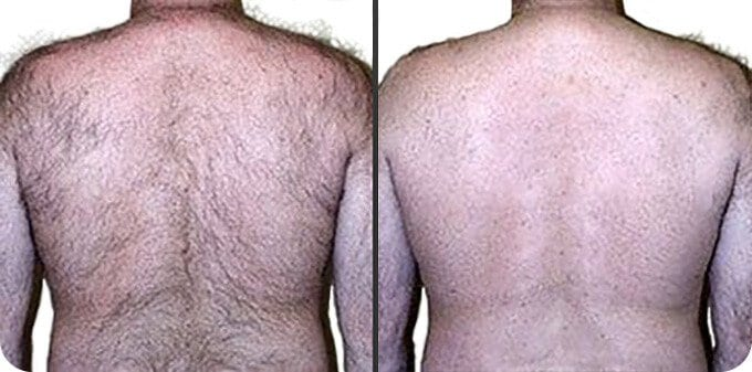 hairy back and electrolysis for back