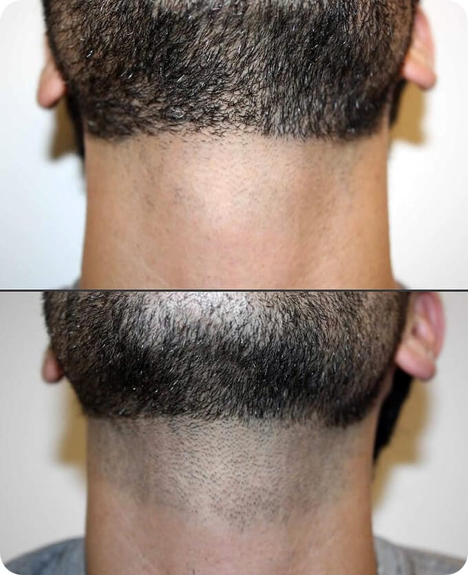 hairy neck and electrolysis for neck