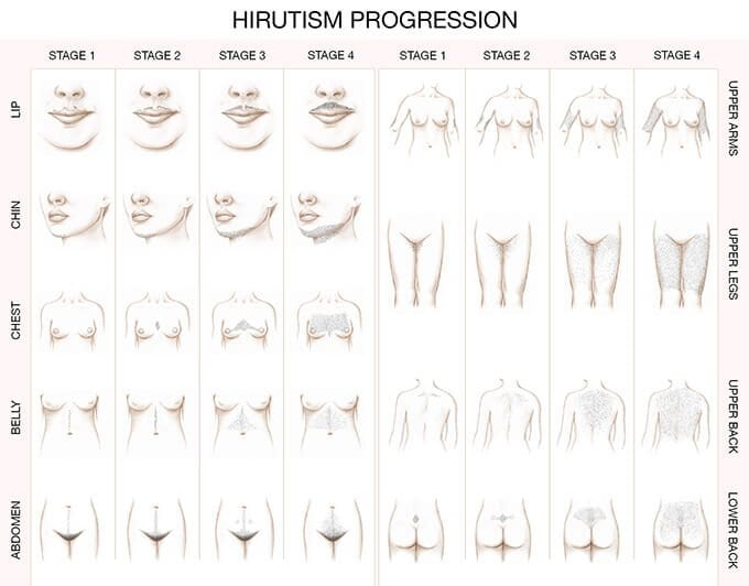 hirsutism progression chart