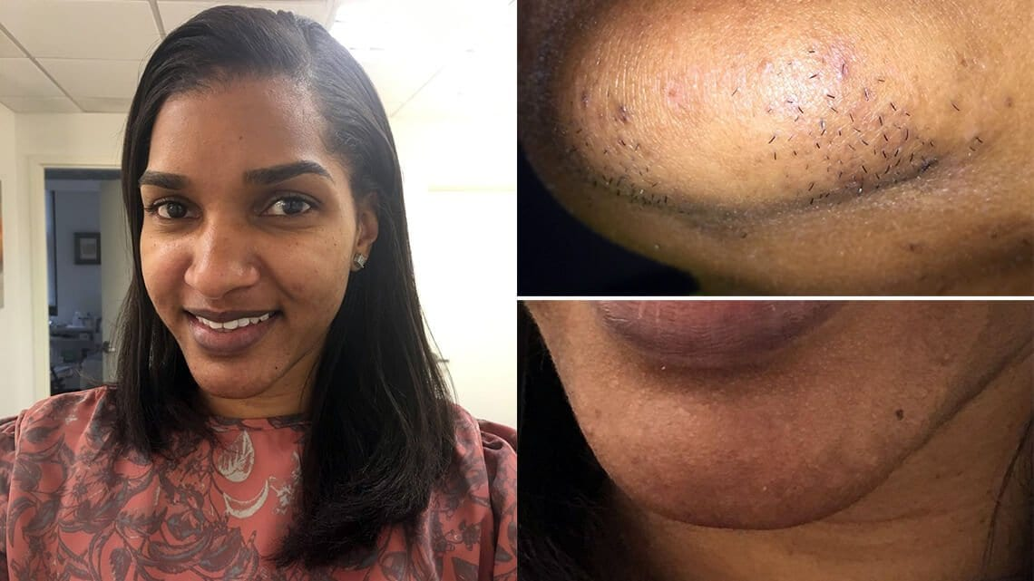 Brown skin girl before and after chin hair removal