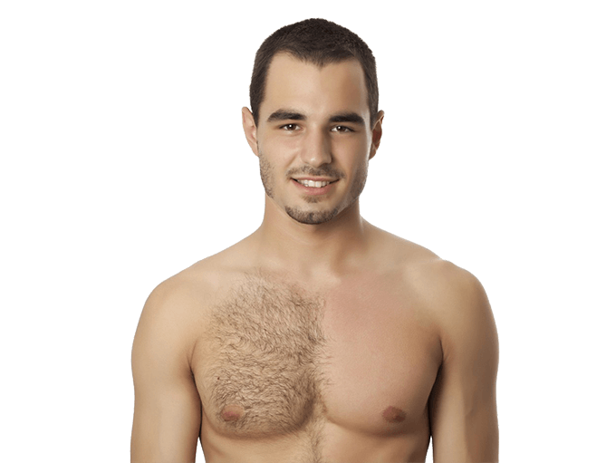 Electrolysis Permanent Body Hair Removal For Men Peach Clinics