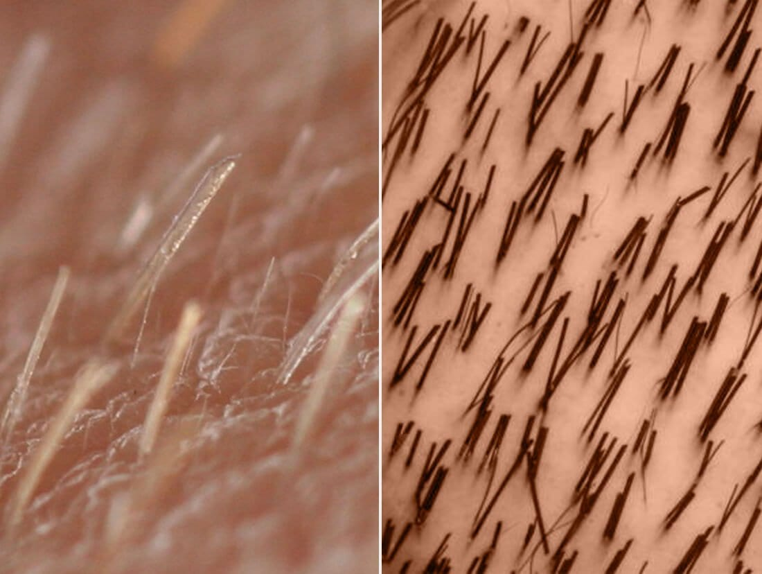 How hair grows and why Laser is not permanent  Peach Clinics