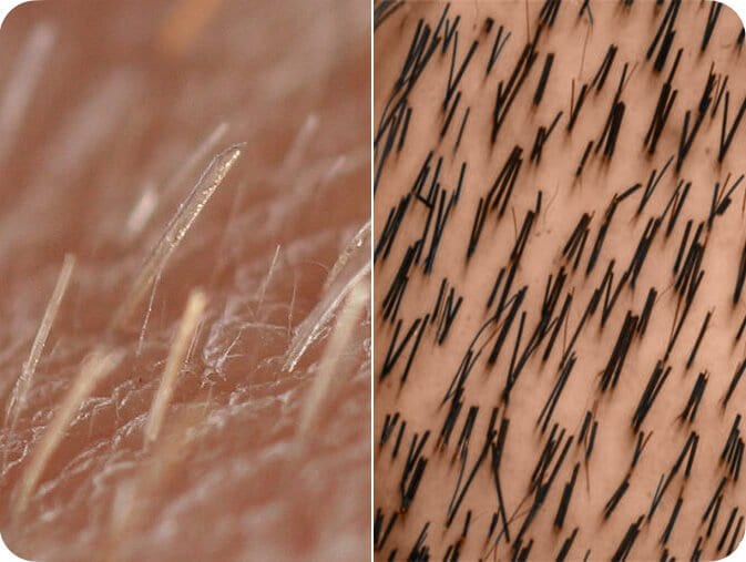 Compare vellus and terminal hair