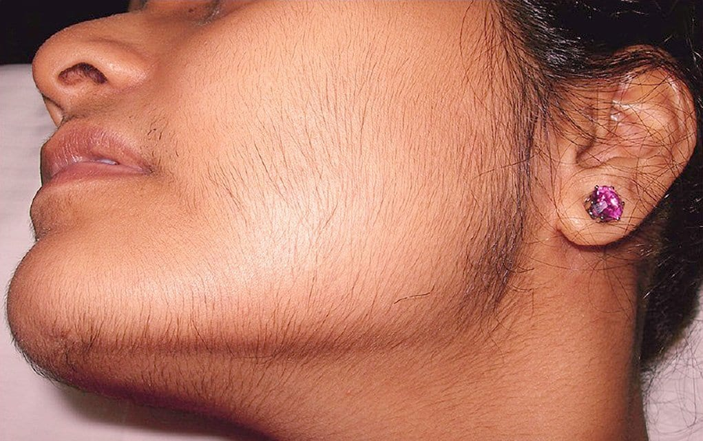 girl with PCOS facial hair