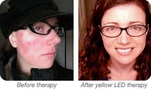 Yellow LED light therapy for rosacea before and after